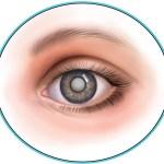 Диагностика катаракты в домашних условиях.