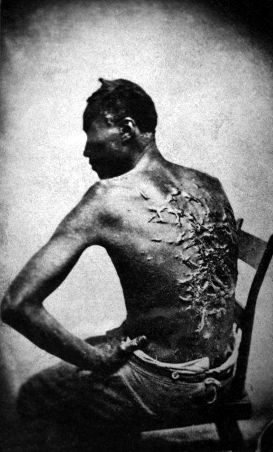 Slave with Scars