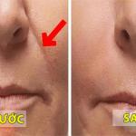 """Loại bỏ nếp gấp ở mũi, má và làm cho làn da trẻ hơn với 4 bước """"thể dục khuôn mặt"""" mỗi ngày!"""