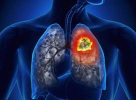10 lời khuyên của bác sĩ từ trường hợp bệnh nhân 30 tuổi đã mắc ung thư phổi di căn xương