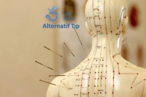 Akupunktur Nedir?