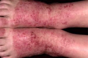 eczema pe picioare cu fotografii varicoase