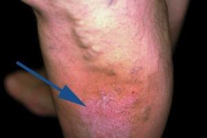 Eczema varicoasă a extremităților inferioare, tratament