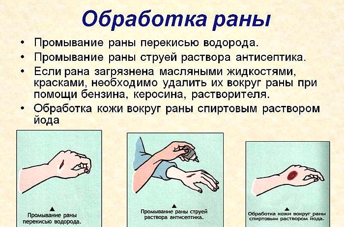 Чем лечить гнойные раны в домашних условиях, как вылечить на ногах