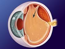 Thank goodness it's only a posterior vitreous detachment after all