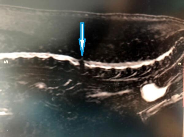 Грыжа межпозвонкового диска на МРТ. Рис. 1