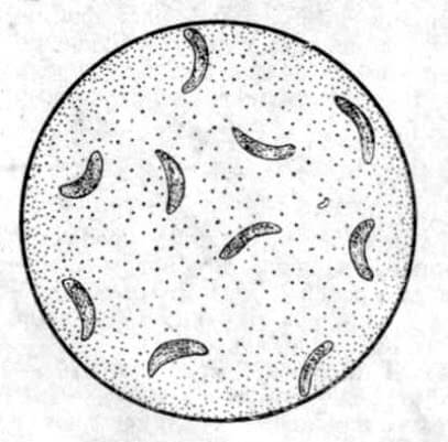 Toxoplasma gondii - возбудитель токсоплазмоза