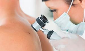 Dra. Gina Matzenbacher - Dermatologia - Cirúrgicos