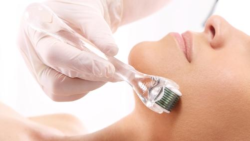 Dra. Gina Matzenbacher - Dermatologia - Indução percutânea com agulhas - IPCA® (microagulhamento)