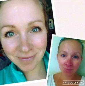 SENSITIVE SKIN ?  Rodan + Fields Soothe 1