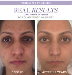 redefine real results patriva