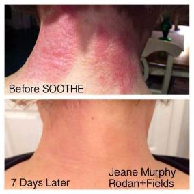 soothe before after