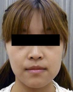 バッカルファットの症例写真2(After)