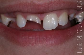 injury before - Mouth Guards
