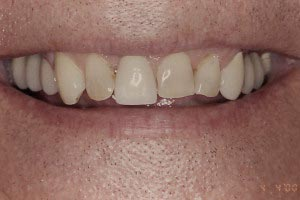 veneers before - veneers_before