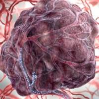 Руски гуру в медицината разкри: Ракът е индустрия за милиарди, всичко може да се излекува до 4 месеца!