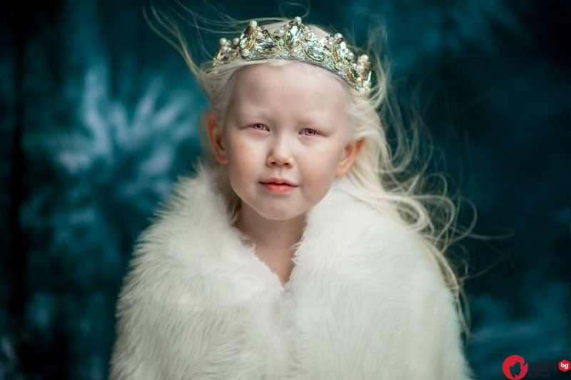 Дете албинос