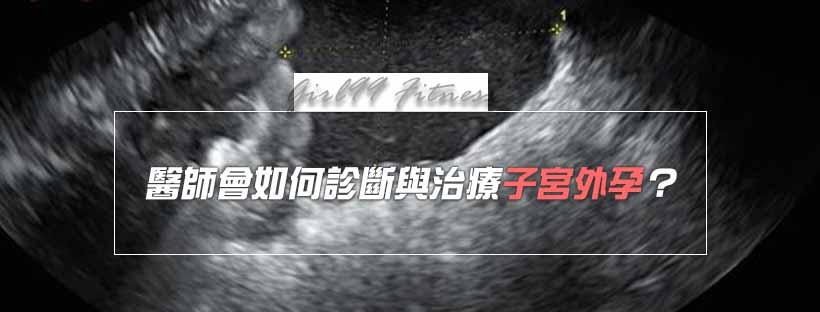 【月經保養】醫師會如何診斷與治療子宮外孕?