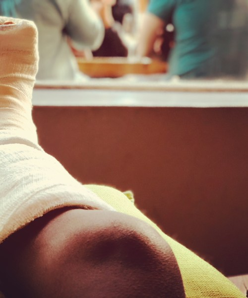 Broke ankle while in Cape Town