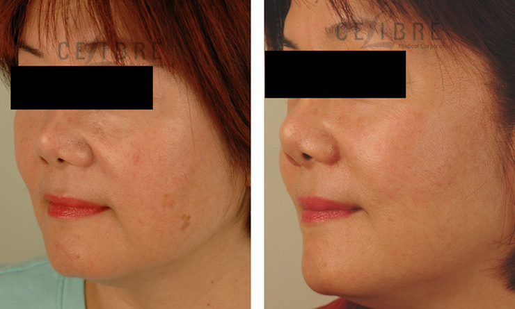 Age Spots and Sun Damage – Can it be Removed with Lasers ...
