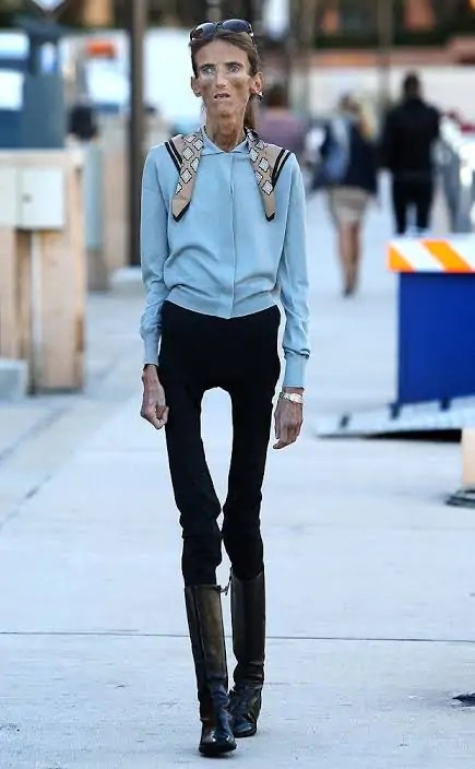 Valeria Levitin skinniest person in the world