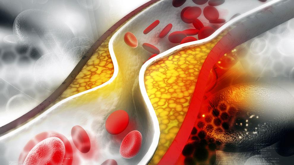 Ilustrasi: kolesterol dalam darah (sumber: health.harvard.edu)