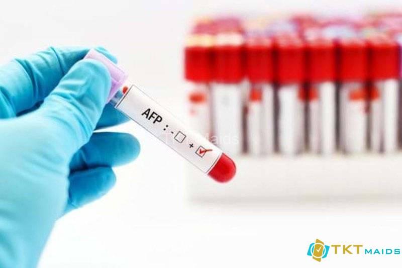 Xét nghiệm định lượng AFP nhằm phát hiện sớm các bệnh lý về gan
