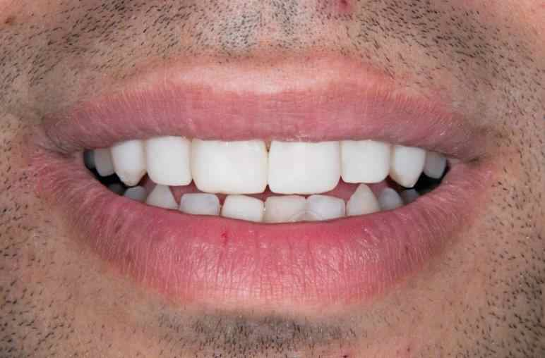Simply Veneers Smile Makeover 1 After