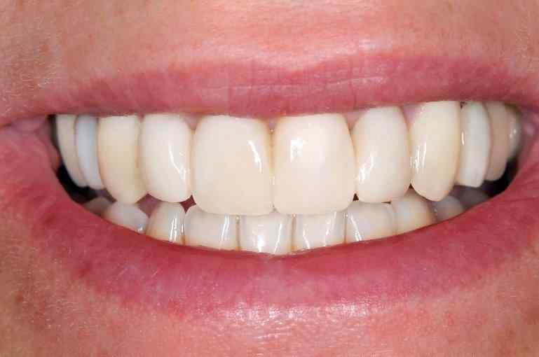 Simply Veneers Smile Makeover 4 After