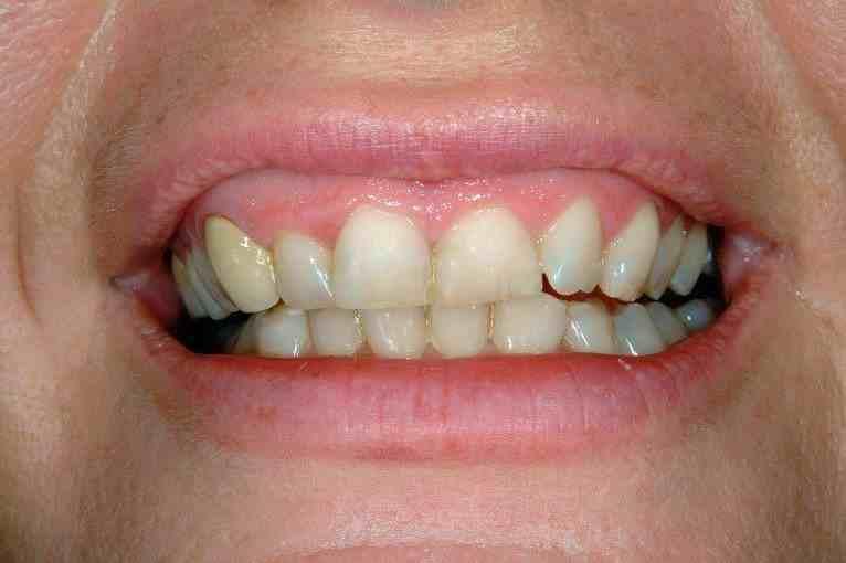 Simply Veneers Smile Makeover 3 Before