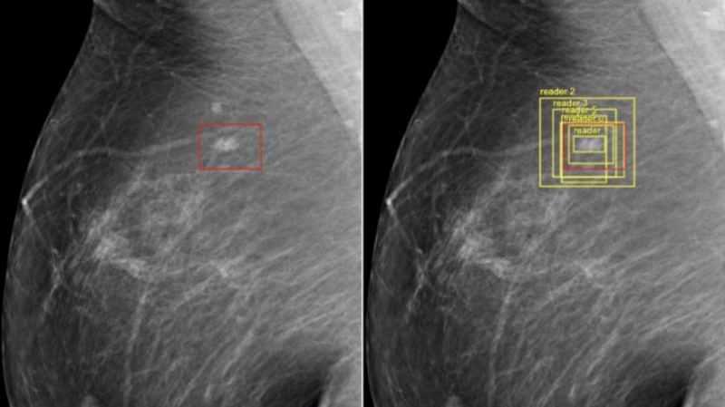 Imagens de inteligência artificial analisando mamografia