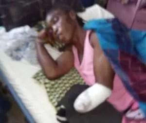 Suspected herdsmen attack Benue woman in her farm, chop off arm 1