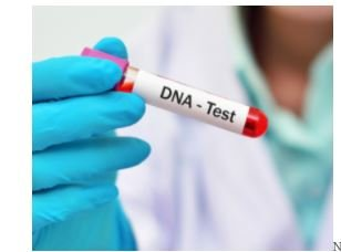 More Nigerians Are Coming Forward For DNA Tests – Nigerian Doctors Say 1