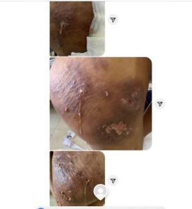 Yansh Surgery Gone Wrong: 'Dr Anu Gave Me An Infection' – Lady Cries Out (Graphic Photos) 2