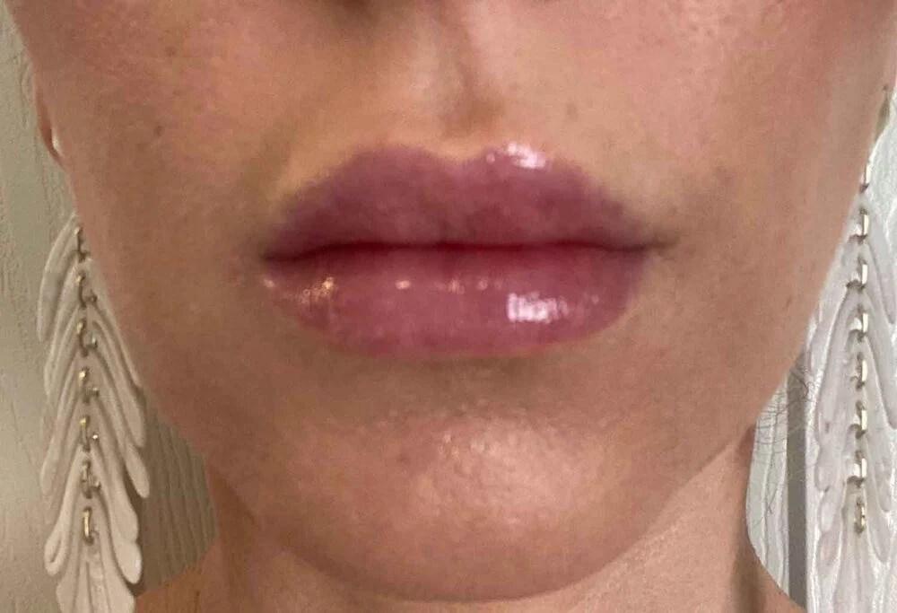 Lip filler close up after photo Eve Dawes Vegas