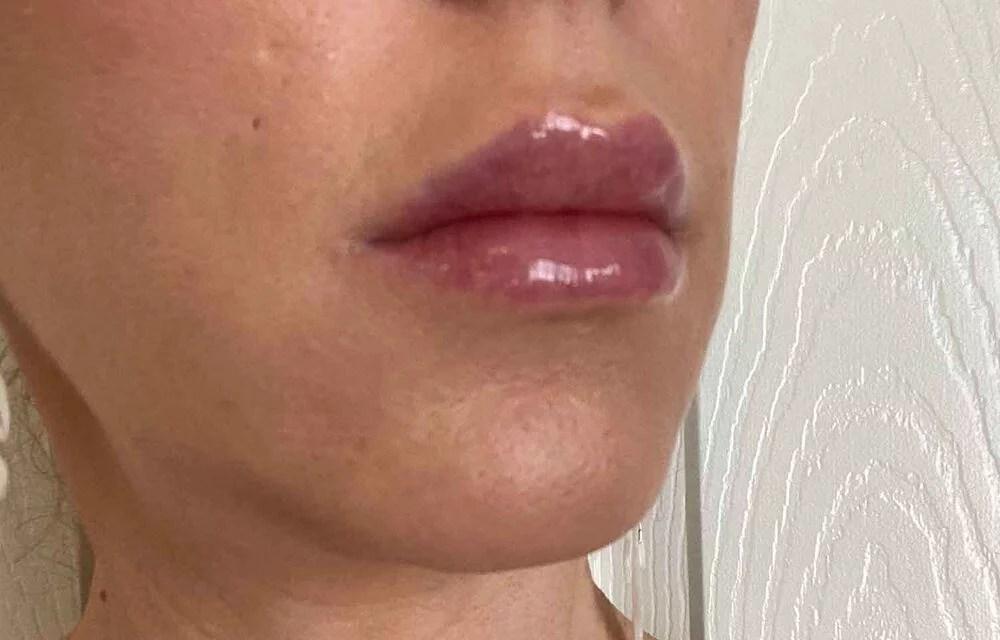 After lip filler Nuance Med Spa Vegas Eve Dawes