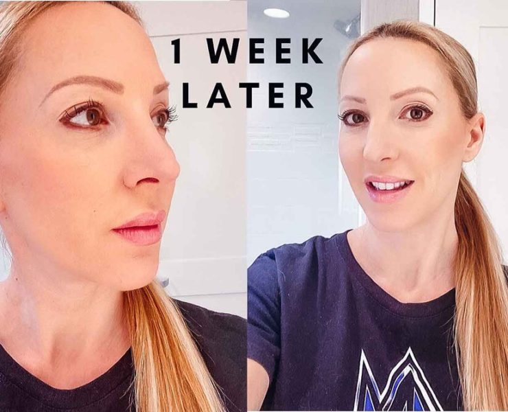 microneedling before after beauty blogger
