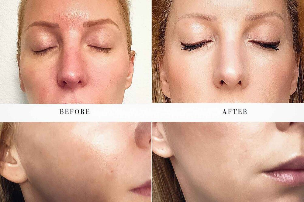 Collagen induction therapy results before after eve dawes