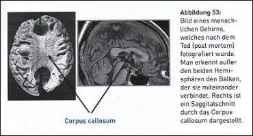 Das menschliche Gehirn - Schnitt durch die beiden Hemissphären