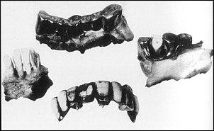 Unmittelbar nach Kriegsende exhumierten sowjetische Offiziere Hitlers verbrannte Überreste und stellten die Echtheit anhand seiner Zähne fest.