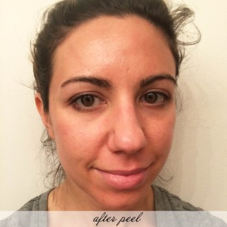 Lifestyle Blogger Glass of Glam's review of the Serious Skincare Facial Peel and Gommage