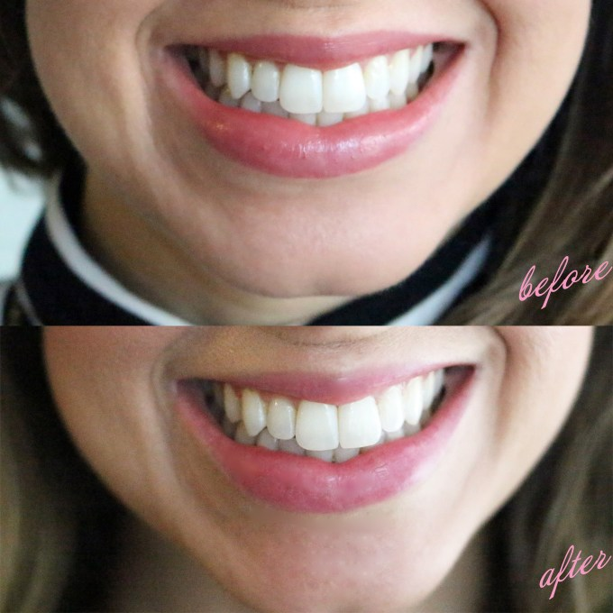Smile Brilliant Before and After