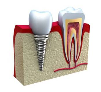 Drawing of an implant