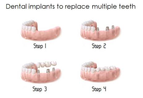 Denta implants to repace multiple teeth