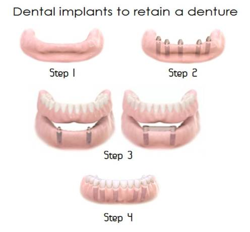Dental implants to retain a denture
