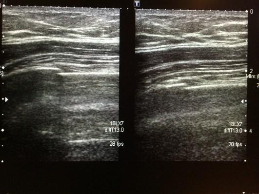 My first broken rib from skiing. 24 Feb 2014.