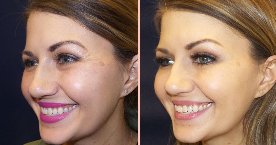 A before and after image of Botox on crow's feet.