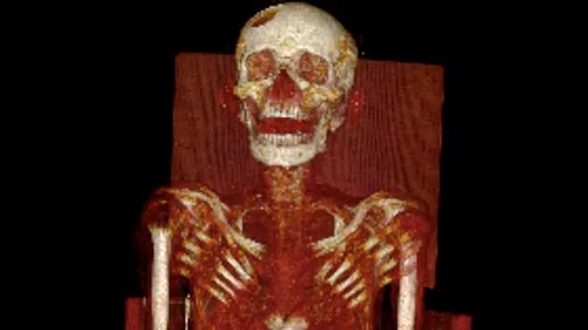 momia exploraciones-enfermedad-1.jpg