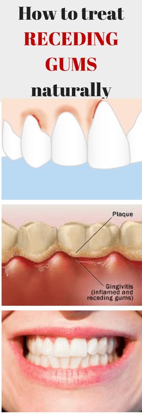 treat gum disease, best remedies, treat gingivitis