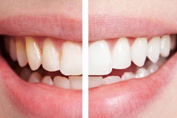 dokter gigi depok prosedur pemutihan gigi terbaik